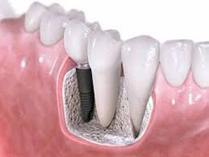 Implantatsioon
